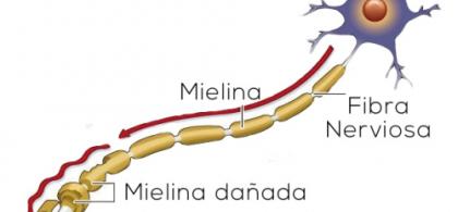 Gráfico ilustrativo de la esclerosis múltiple